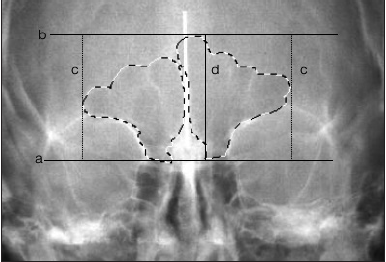 Effect of Vertical Growth Pattern on Maxillary and Frontal Sinus Sizes